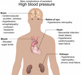 Public Domain https://commons.wikimedia.org/wiki/File:Main_complications_of_persistent_high_blood_pressure.svg