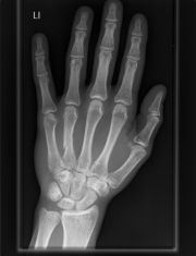An x-ray of a hand.  Wikimedia Commons